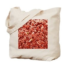 Human blood cells, SEM Tote Bag
