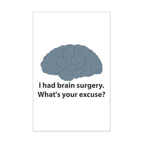 I had brain surgery. What's Mini Poster Print