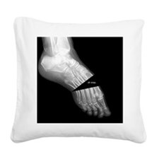 broken_foot_xray_oh_snap Square Canvas Pillow