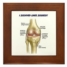 Knee Surgery Gift 9 Framed Tile