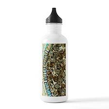 Sporophyte capsule of  Water Bottle