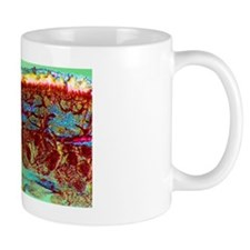 Foot skin tissue, light micrograph Mug