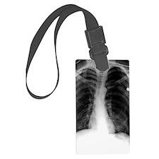 'Pneumothorax, X-ray' Luggage Tag
