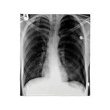 'Pneumothorax, X-ray' Throw Blanket