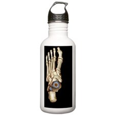 Normal foot, 3D CT sca Water Bottle