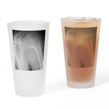 Broken shoulder, X-ray Drinking Glass