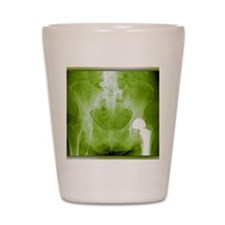 Total hip replacement, X-ray Shot Glass