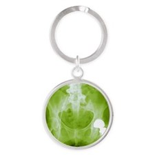 Total hip replacement, X-ray Round Keychain