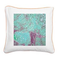 Tongue cancer, light microgra Square Canvas Pillow