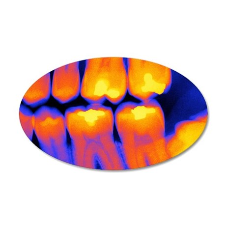 Teeth with fillings, X-ray 35x21 Oval Wall Decal