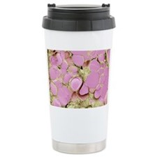Thyroid gland, SEM Ceramic Travel Mug