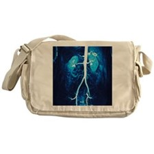 Normal renal arteries, MRA scan Messenger Bag