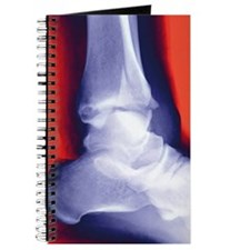 Fractured ankle, X-ray Journal