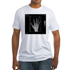 Normal hand, digital X-ray Shirt