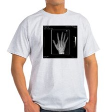 Normal hand, digital X-ray T-Shirt