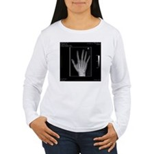 Normal hand, digital X T-Shirt