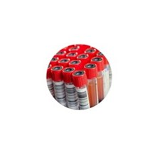 Blood samples Mini Button