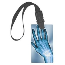 Arthritic hand, X-ray Luggage Tag
