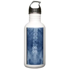 Fusion of spinal bones Water Bottle