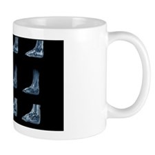 Charcot arthropathy, MRI scans Mug