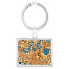 Pancreas cell, TEM Landscape Keychain
