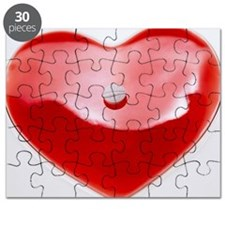 Unhealthy heart Puzzle
