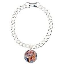 Internal brain anatomy,  Bracelet