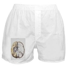 Brain anatomy Boxer Shorts