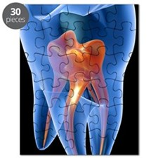 Molar tooth Puzzle