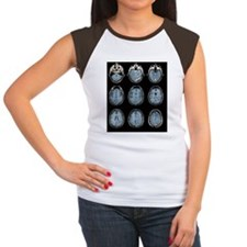 Normal brain, MRI scans Tee