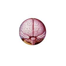 Artwork of human brain enclosed in dre Mini Button