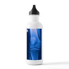 Arthritic knee Sports Water Bottle