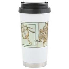 Artwork showing appendicitis Ceramic Travel Mug