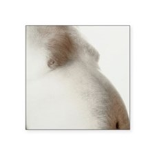 "Bare abdomen of an obese ma Square Sticker 3"" x 3"""