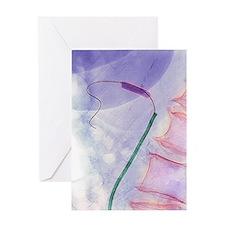 Balloon angioplasty, X-ray Greeting Card