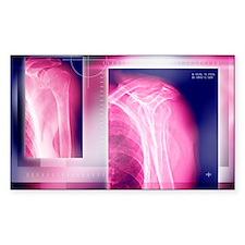 Broken collar bone, X-ray Decal