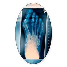 Bunion, X-ray Decal