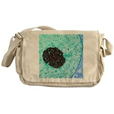 Cancer cell nucleolus, TEM Messenger Bag