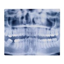 Close-up of a teeth x-ray Throw Blanket