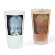 X-ray of skull Drinking Glass