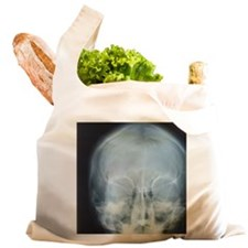 X-ray of skull Reusable Shopping Bag