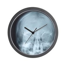 X-ray of skull Wall Clock