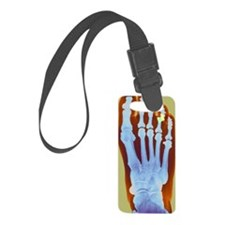 Dislocated toe, X-ray Luggage Tag