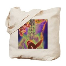 Crohn's disease, X-ray Tote Bag