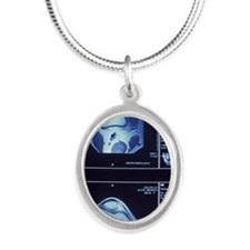 Multiple MRI scans of knee jo Silver Oval Necklace