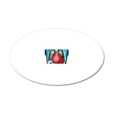 Enlarged heart, X-ray 20x12 Oval Wall Decal