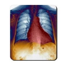 Enlarged heart, X-ray Mousepad