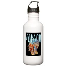 Epilepsy: MRI brain sc Water Bottle