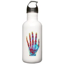 Fractured palm bones o Water Bottle