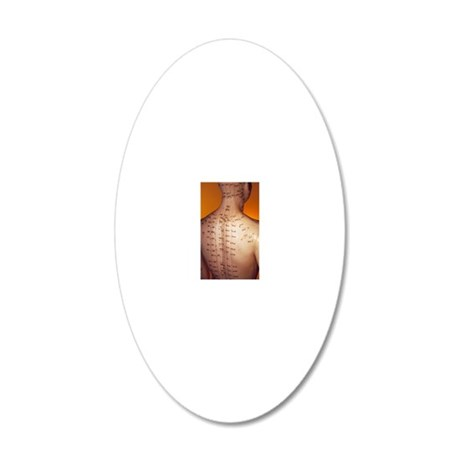 Acupuncture model 20x12 Oval Wall Decal